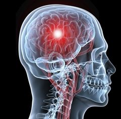 Порушення мозкового кровообігу