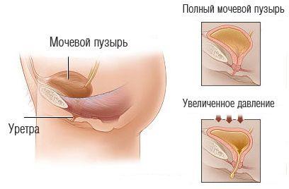 Неврогенному нетримання сечі