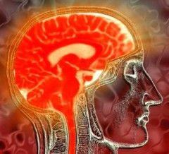 Недостатність мозкового кровообігу