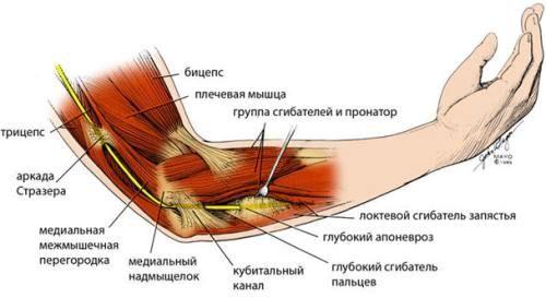 Невропатія ліктьового нерва