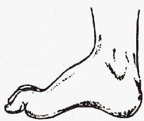 Симптоми невропатії великогомілкової нерва