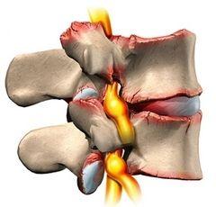 Освіта остеофитов при остеоартрозі