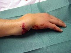 Переломи кісток