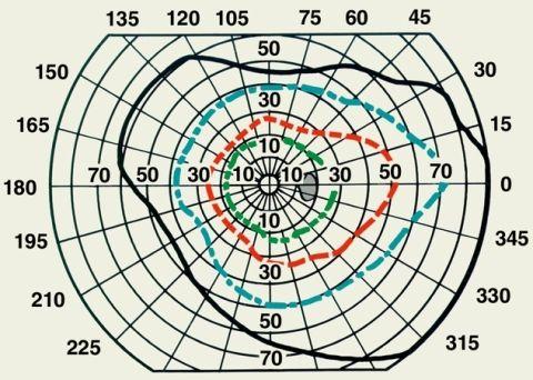 Периметрія: схема нормальних меж поля зору