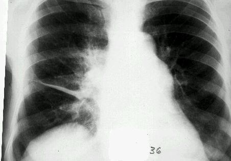 Рентгенографія легень при фибринозном плевриті
