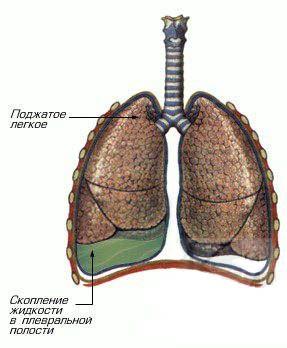 Схематичне зображення правостороннього ексудативного плевриту