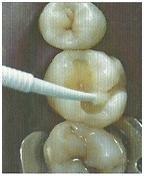 Пломбування зубів каріозних порожнин і кореневих каналів