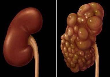 здорова нирка зліва і уражена полікістозом праворуч