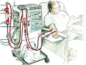 Пацієнт під час процедури гемодіалізу