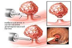 Лікування поліпів прямої кишки