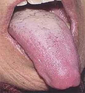 Сухість у роті і білий мову