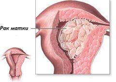 Рак ендометрія матки
