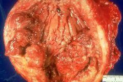 2-я стадія раку сечового міхура
