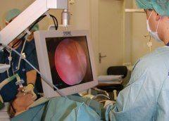 Хірургічне лікування раку сечового міхура