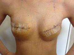 Лікування раку молочної залози