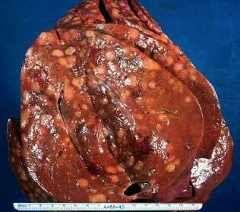 Метастази в печінці при раку