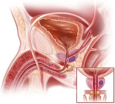 Симптоми злоякісної пухлини передміхурової залози
