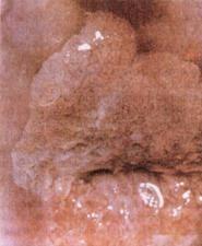 Рак шийки матки