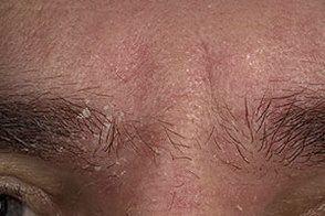 На фото симптоми себорейного дерматиту особи