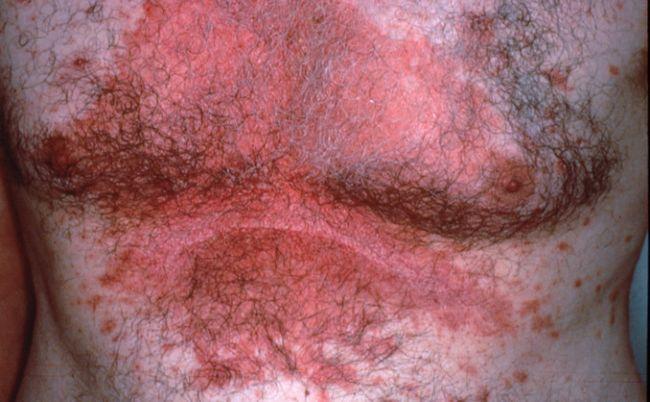На фото симптоми себорейного дерматиту тіла