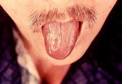 Симптоми сифілісу