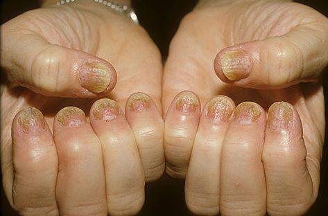 Псоріаз нігтів