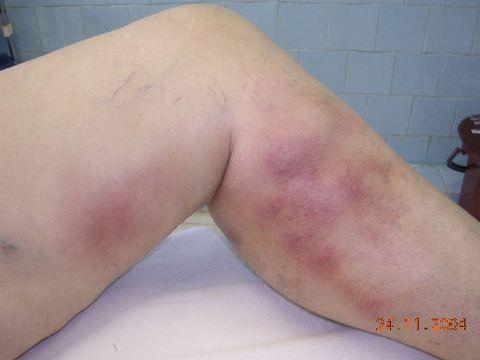 Симптоми тромбофлебіту
