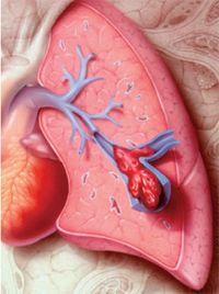 Тромбоемболія легеневої артерії (ТЕЛА)
