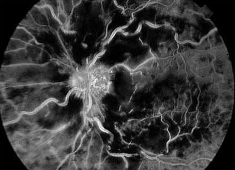 Флуоресцентна ангіографія