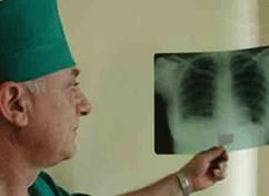 Туберкульоз симптоми і лікування, туберкульоз у дітей