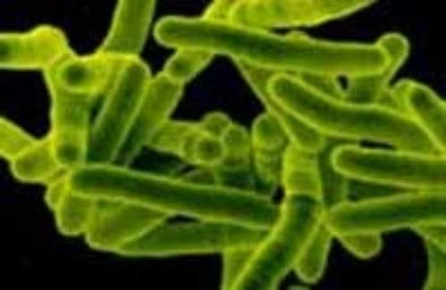 Збудник туберкульозу паличка Коха