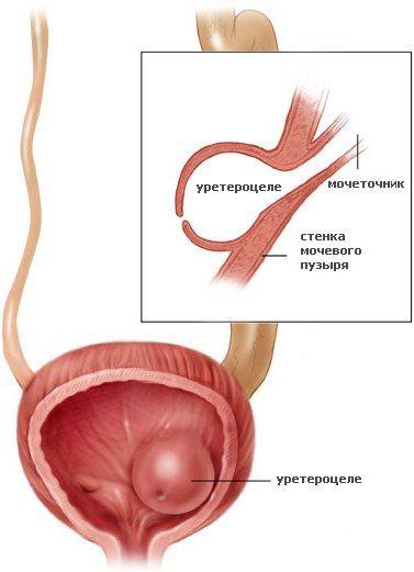 Уретероцеле