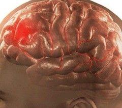 Забій головного мозку