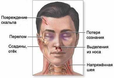 Ознаки черепно-мозкової травми