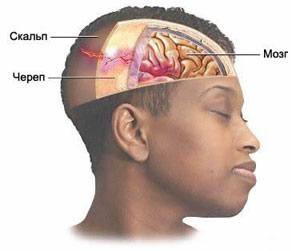 Пошкодження головного мозку при переломі кісток склепіння черепа