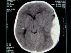 На томограмі видна гематома, здаючи речовину мозку