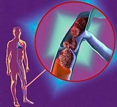 Тромбоз вен нижніх кінцівок