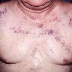 Синдром здавлення верхньої порожнистої вени