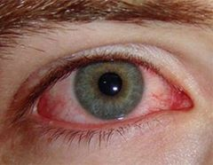 Відісік може викликати подразнення очей
