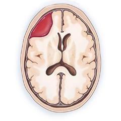 Внутрішньочерепна гематома