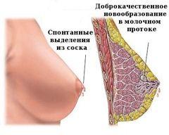 Виділення із сосків при вагітності