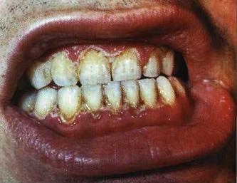 Захворювання ясен: гінгівіт