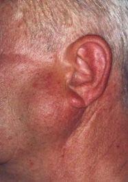 Рак привушної слинної залози